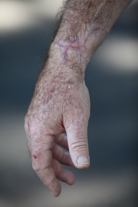 Steve Bowers arm