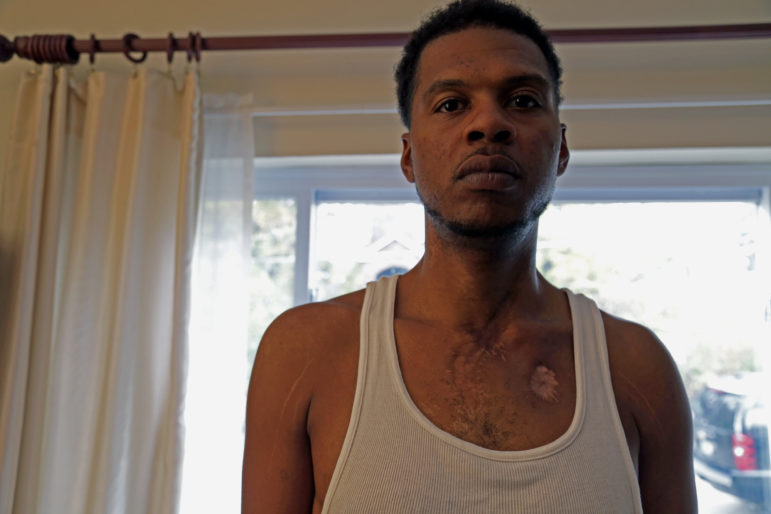 Chris Wallace was shot 14 times. He wants others to learn from his struggle.