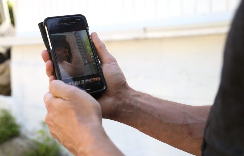 Robert Aldred flips through photos on his phone showing injuries sustained when a police dog bit him in June 2017. (Photo by Ryan Loew/PublicSource)
